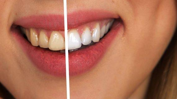 La sigaretta elettronica riduce anche i danni da fumo alla bocca